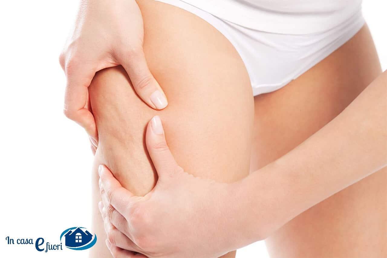 Cellulite, Principali Cause E Come Combatterla A Tavola